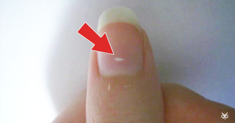 What Do Those White Spots On Your Fingernails Mean
