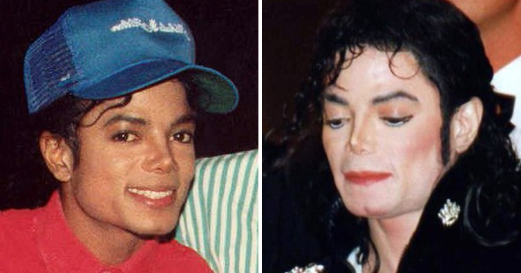 Why Michael Jackson S Skin Turned White Over The Years I M A Useless Info Junkie
