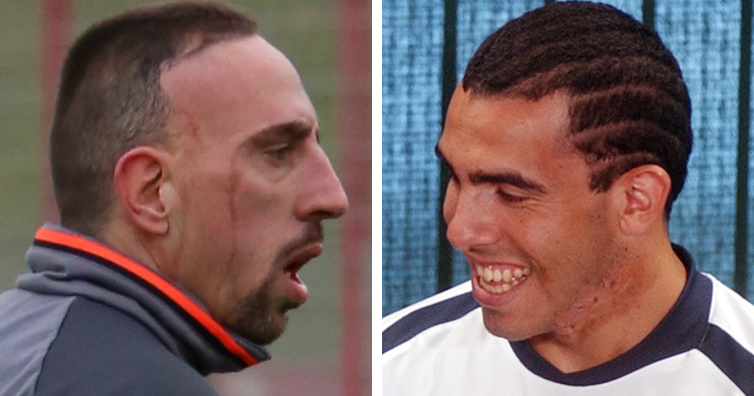 How Did Franck Ribéry And Carlos Tevez Get Their Permanent Scars